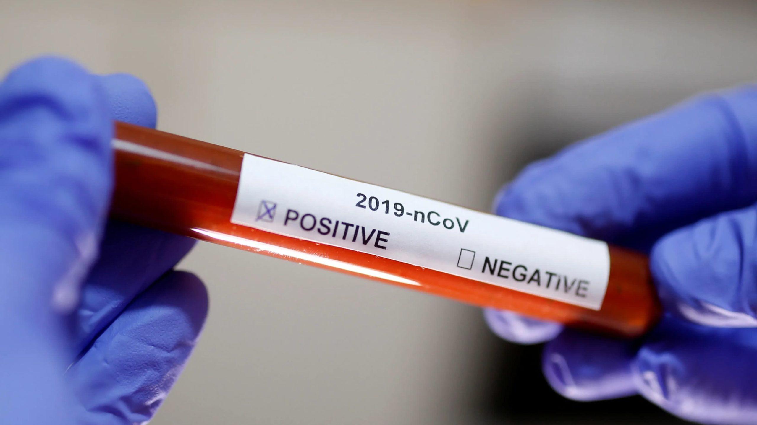 koronavirus vzorka